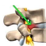 Почему болит спина и как с этим справиться
